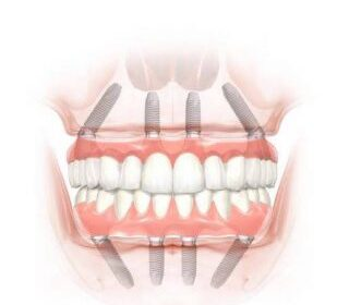 Sfp Dental Service: Vuoi tornare a sorridere?